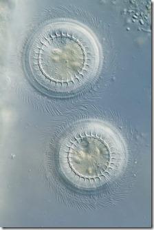 Trichodina ist ein häufiger Schwächeparasit im Koiteich und wird effektiv mit Halamid bekämpft.